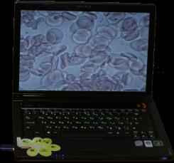 Our Vereinfachung und Visualisierung lebenBlutanalyse, hat sich unser Unternehmen speziellkonzipiertes Programm Dianel ®-Micro, bietet einegrundlegend neue Möglichkeiten für Ärzte in der Analyseder lebendigen Blut und die Vorbereitung desAbschlusses.Dianel®-Micro ist eine Software, die biologischeDunkelfeld-Mikroskop und einem Personal Computer übereine digitale Video-Kamera verbindet sich eineleistungsstarke Workstation und Forschung komplex
