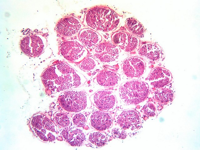 Фото полученные на микроскопе Микромед 3 вар. 3-20 М